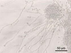 Candida albicans